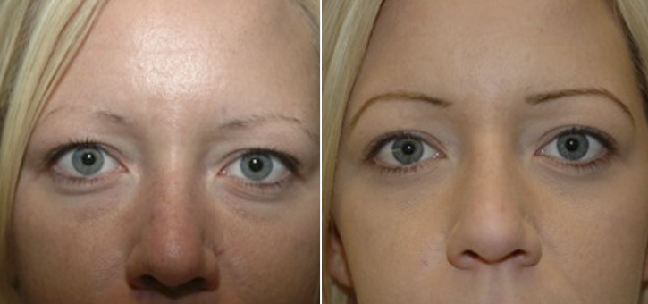 Eyelid Lift Patient6-2