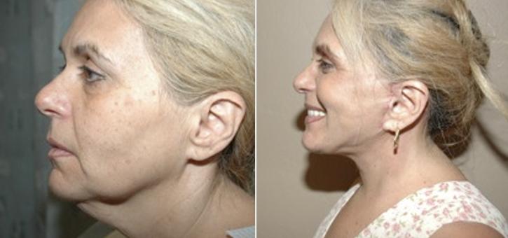 Facelift Patient1-2