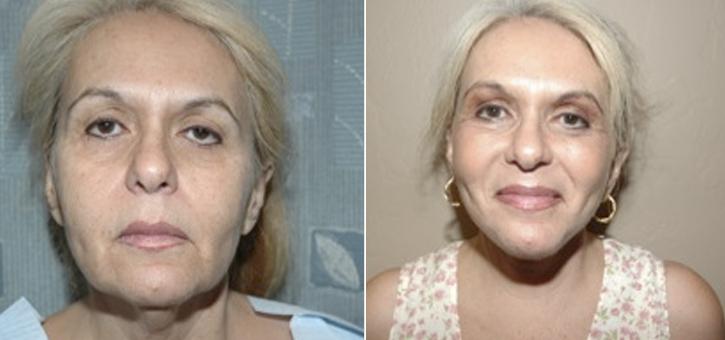Facelift Patient1