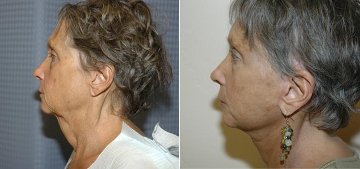 Facelift Patient11-2