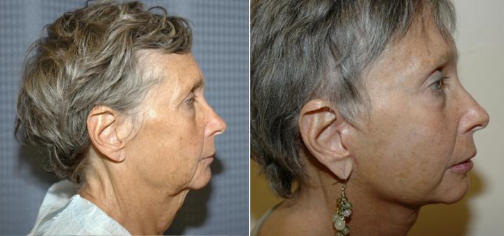 Facelift Patient11-3