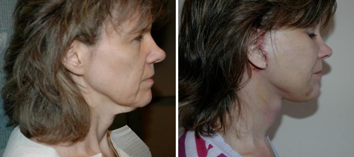 Facelift Patient12-2