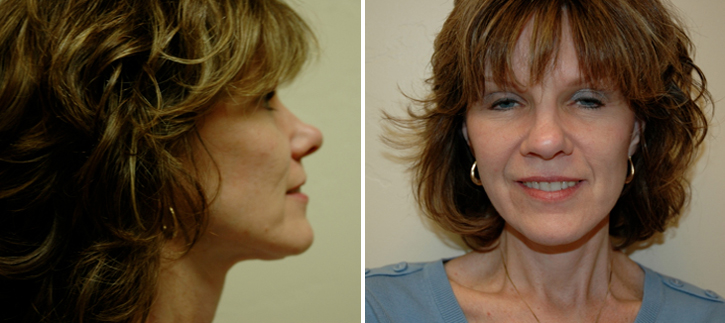 Facelift Patient12-3