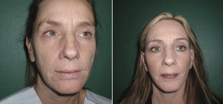 Facelift Patient2