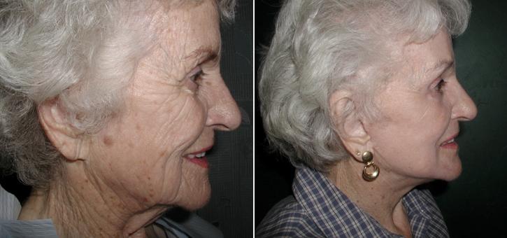Facelift Patient4-2