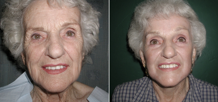 Facelift Patient4