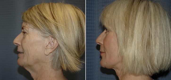 Facelift Patient5-2