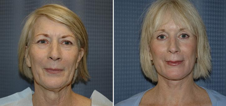Facelift Patient5