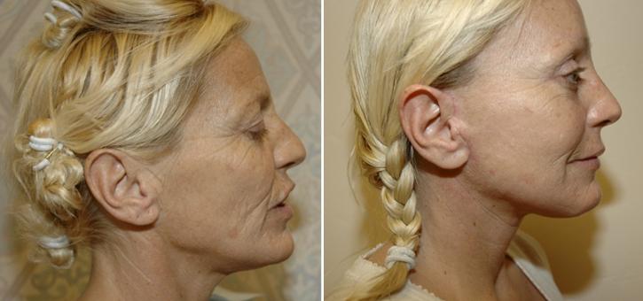 Facelift Patient7-2