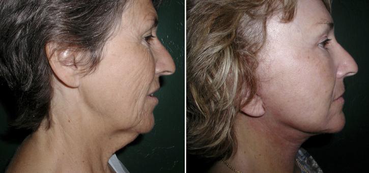 Facelift Patient8-2