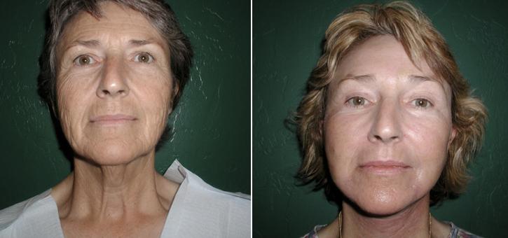 Facelift Patient8