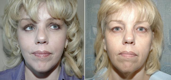 Facelift Patient9
