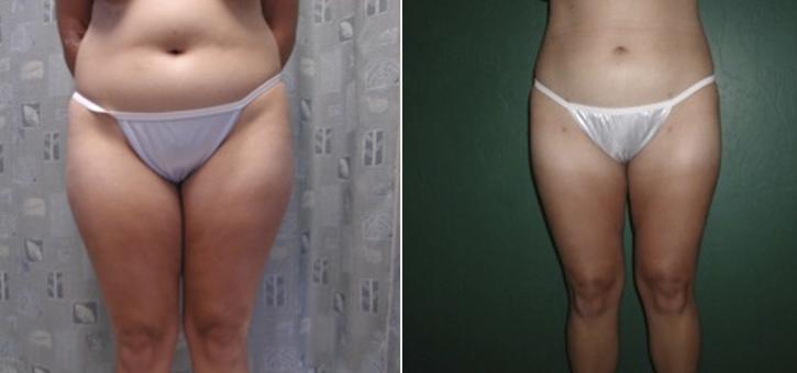 Liposuction Patient1