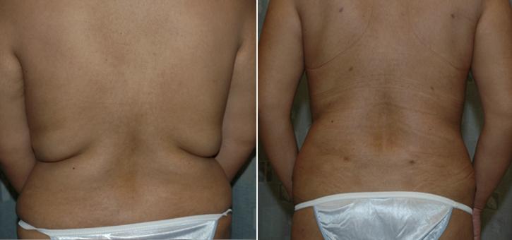 Liposuction Patient3