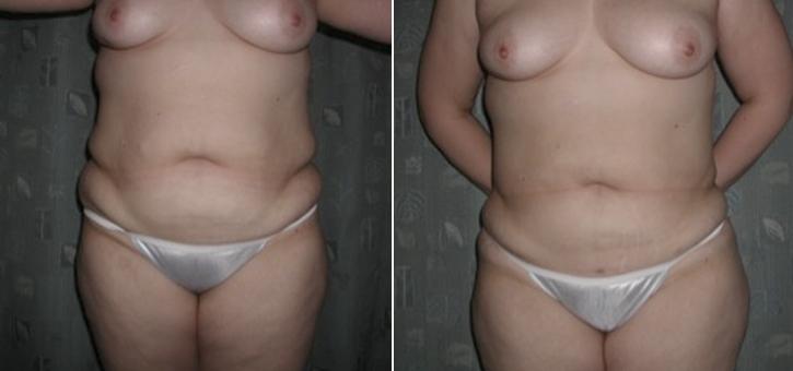 Liposuction Patient4