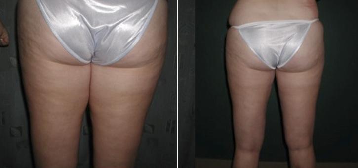 Liposuction Patient5-2