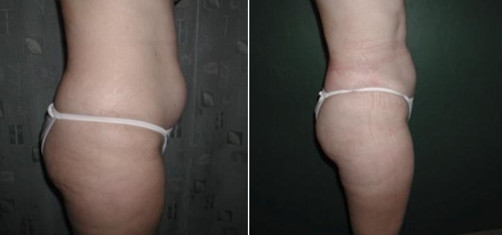 Liposuction Patient5-3