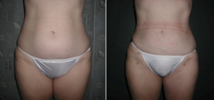 Liposuction Patient5-4