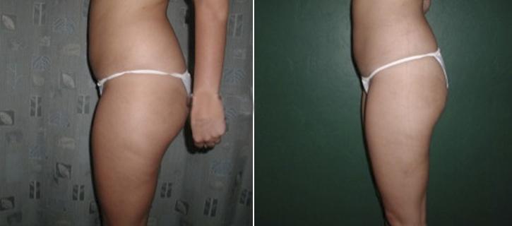 Liposuction Patient6-3