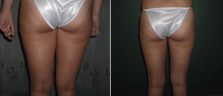 Liposuction Patient6-4