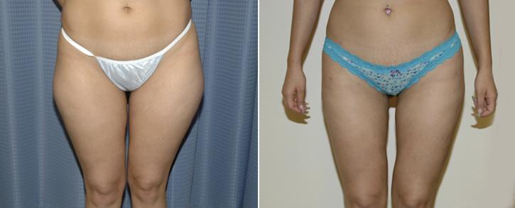 Liposuction Patient7-2