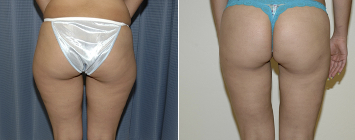 Liposuction Patient7-3