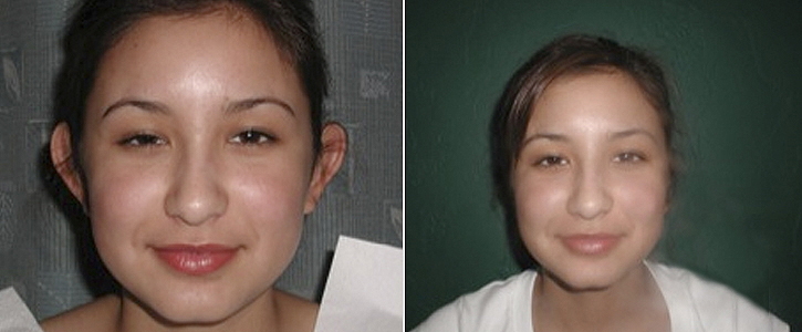 Otoplasty Patient1