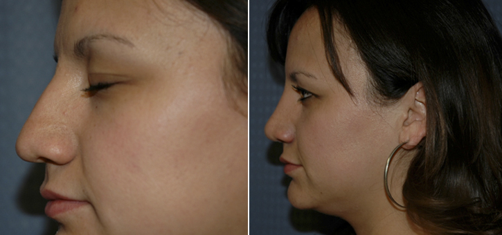 Rhinoplasty Patient10-2