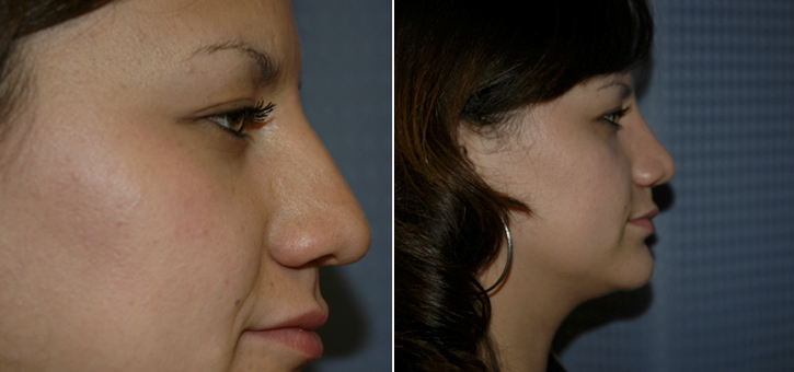 Rhinoplasty Patient10-3