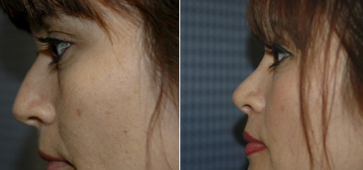 Rhinoplasty Patient11-3