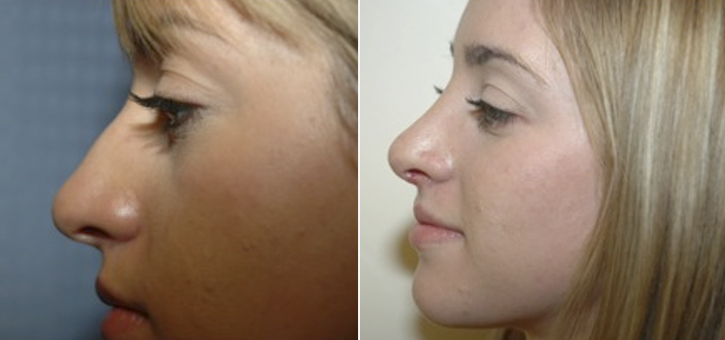 Rhinoplasty Patient2-2