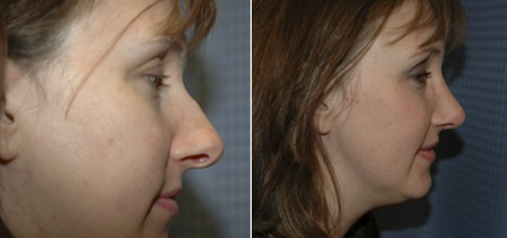 Rhinoplasty Patient3-2