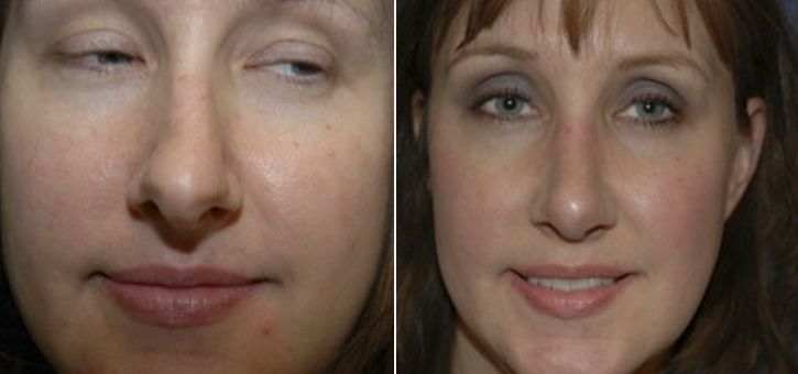 Rhinoplasty Patient3