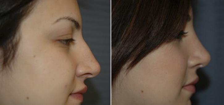 Rhinoplasty Patient5-2