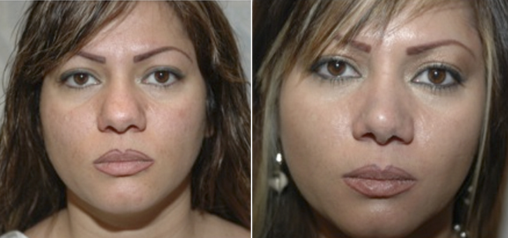 Rhinoplasty Patient6