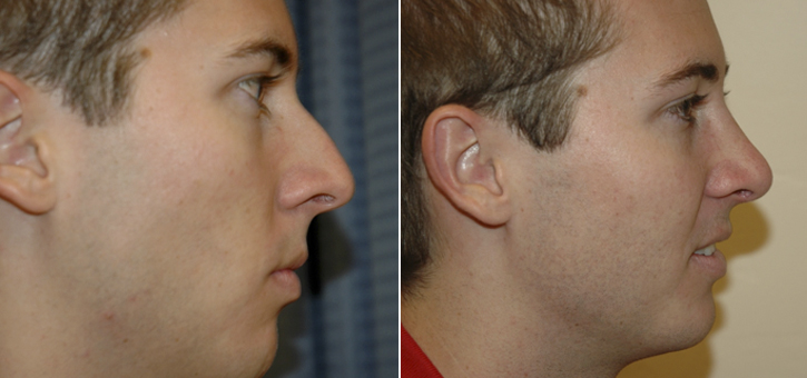 Rhinoplasty Patient7-2