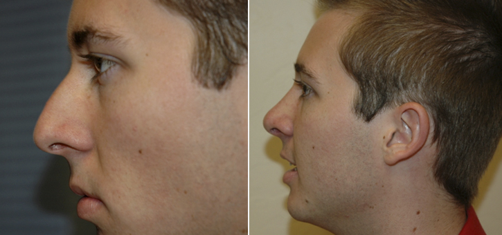 Rhinoplasty Patient7-3