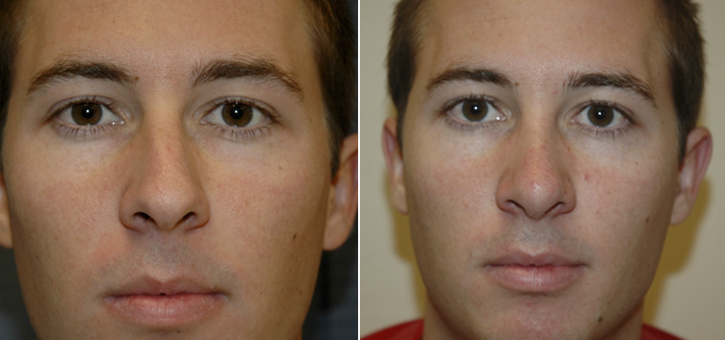 Rhinoplasty Patient7