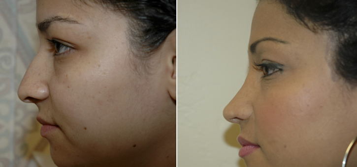 Rhinoplasty Patient8-2