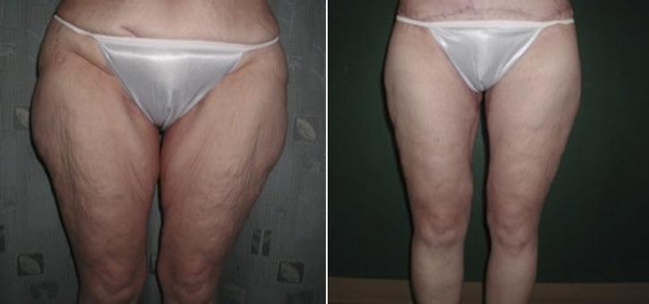 Thigh Lift Patient1