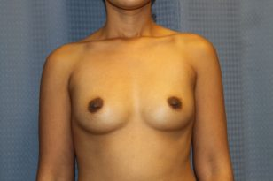 1-breast-augmentation-425cc-hpgel-1