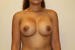 1-breast-augmentation-425cc-hpgel-2