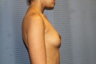 1-breast-augmentation-425cc-hpgel-3