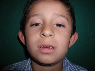 1-ear-reshpaing-otoplasty-2