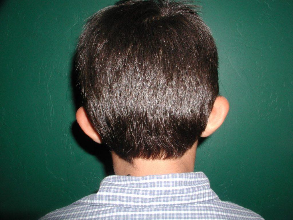 1-ear-reshpaing-otoplasty-4
