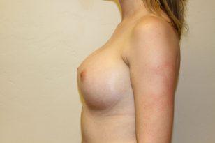 16-breast-augmentation-350ccm-gel-4