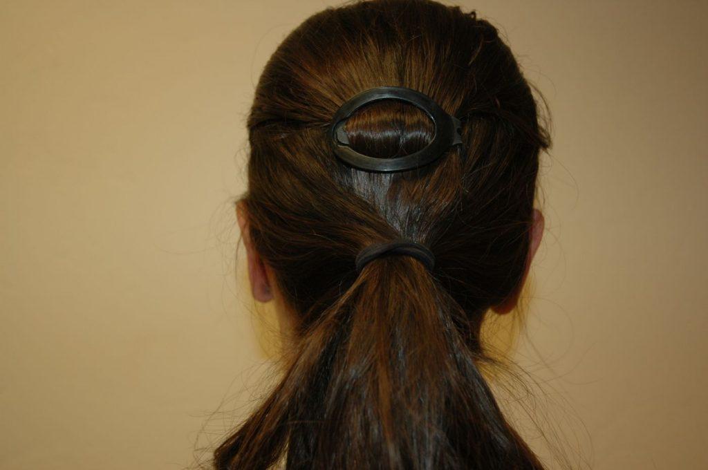 2-ear-reshaping-otoplasty-2