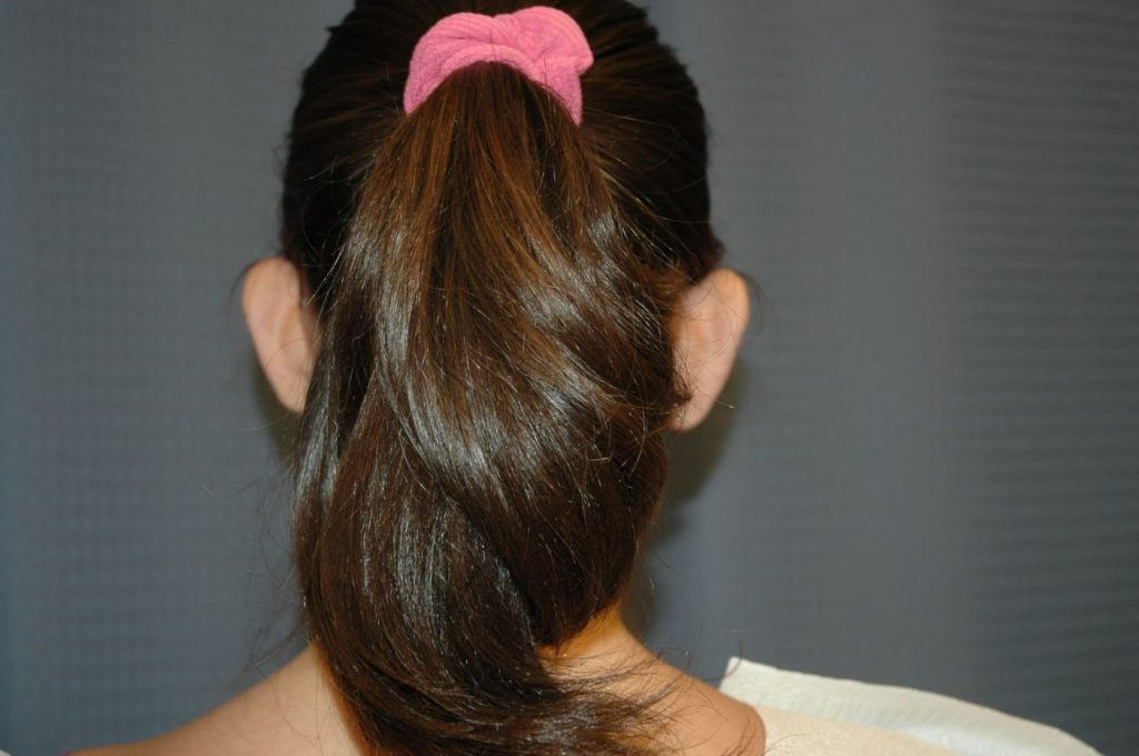 2-ear-reshaping-otoplasty-3
