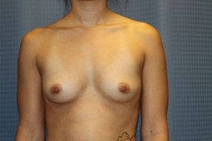 21-breast-augmentation-300cchpgel-1