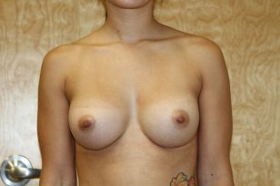 21-breast-augmentation-300cchpgel-2